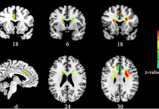 В Китае изучили влияние любви на мозг