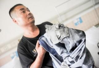 В Китае у мужчины в кармане взорвался телефон
