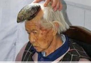У 87-летней китаянки на лбу вырос рог