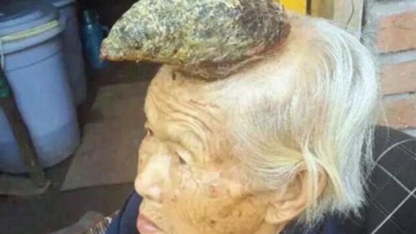 у китаянки вырос рог