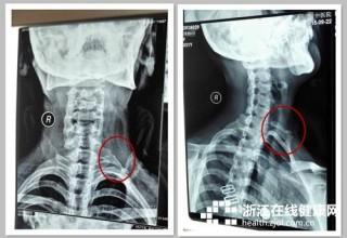 В шее китаянки было обнаружено добавочное ребро