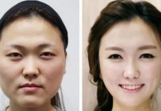 Китаянки больше всех в мире тратят на пластических хирургов