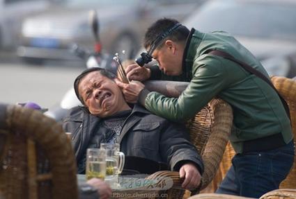 Китайские хирурги пересадили пациенту наголову выращенное наего руке ухо
