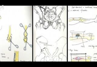 Китайский врач для успокоения пациентов объясняет операции на своих рисунках
