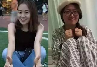 Китаянка с болезнью Шарко пожертвовала голову для медицинских исследований