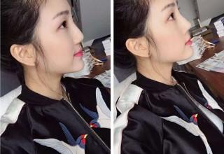 Убийственная красота: китаянка чуть не задохнулась из-за вставки для изящного носа