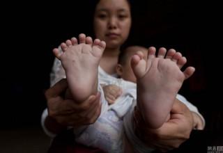 В Китае родился мальчик с 31 пальцем