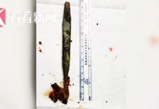 Китаец 20 лет назад проглотил зубную щетку и забыл об этом. Недавно ее достали