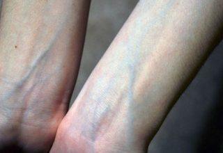 В Китае разработали технологию распознавания людей по рисунку вен на руках