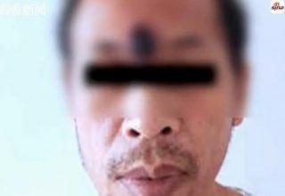 У китайца диагностировали злокачественную опухоль кожи. Он просто выдавил прыщ