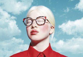 «Снежная красавица». История модели-китаянки с альбинизмом